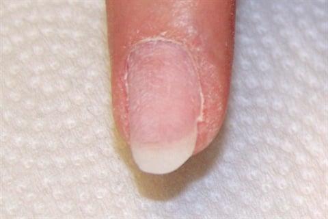 Healthy Nail Growth