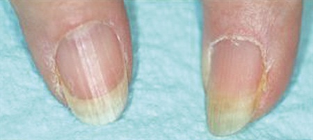 <p>Onychorrhexis (longitudinal ridging)</p>