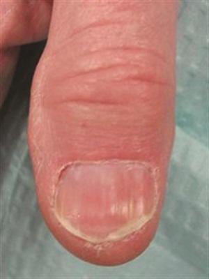 <p>Longitudinal erythronychia (six months post biopsy)</p>