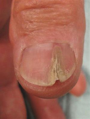 Longitudinal erythronychia (pre-biopsy)