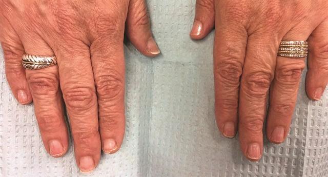 <p>Onychoschizia (nail peeling)</p>