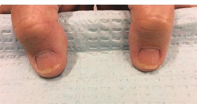 <p>Onychorrhexis (nail ridging)</p>