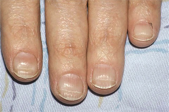 <p>Beau's lines often occur during chemotherapy and grow out in time.</p>
