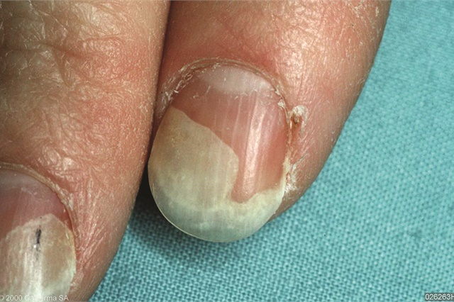 Cancer patients may experience onycholysis, a symptom where the nail lifts away from the nail bed.
