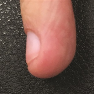 Bitten nails often have a bulge of skin at the tip that can cause trouble.