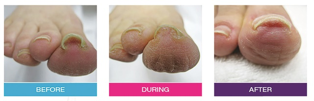 The B S Brace Is A Magnetic System That Corrects Extremely Curved Toenails More Important Than Its Cosmetic Eal Helps Alleviate Pain And