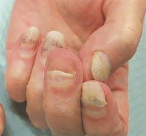This patient experienced onycholysis as a result of chemotherapy.