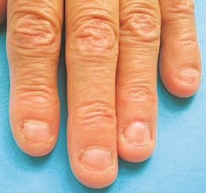 <p>Chronic biting can result in nail shape change.</p>