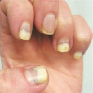 <p>Nail injury is a common cause of onycholysis.</p>