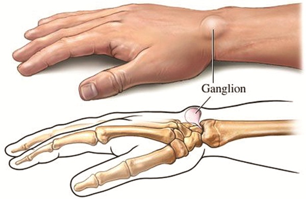 Personal Trainer: Ganglion Cysts - Health - NAILS Magazine