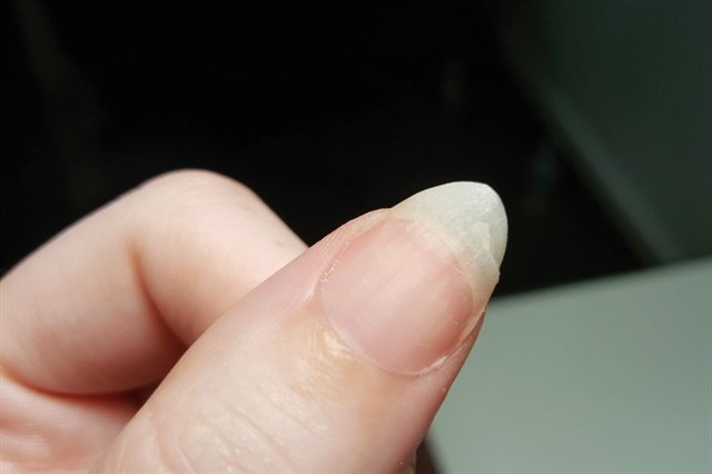 Rescue Natural Nail Clients With a Fiberglass Fix - Technique ...