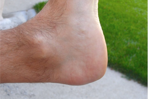 <p>The runner developed Haglund's deformity due to wearing badly-fitting running shoes.</p>