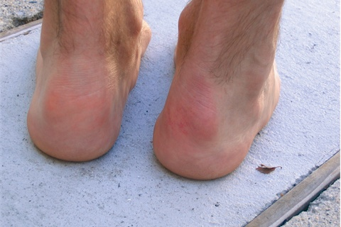 <p>Haglund's Deformity: A bony enlargement on the side of the heel.</p>