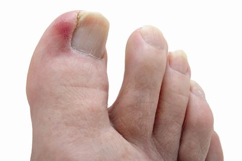 Under the microscope ingrown toenails