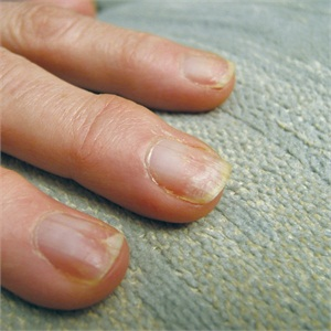 White spots on nails after a gel-polish removal are the tell-tale sign that the gel-polish was removed with too much force and that damage has been done to the natural nail plate.