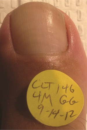 <p>Observe the nails before treatment with the PinPointe FootLaser and four months after treatment. © used by permission Dr. Daniel Waldman, DPM, FACFAS</p>