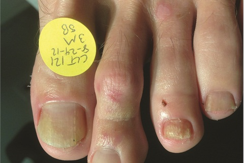 <p>This shows the toenails treatment with the PinPointe FootLaser and at the three-month mark. Note new growth is clean from the base of toenail. © used by permission Dr. Daniel Waldman, DPM, FACFAS</p>