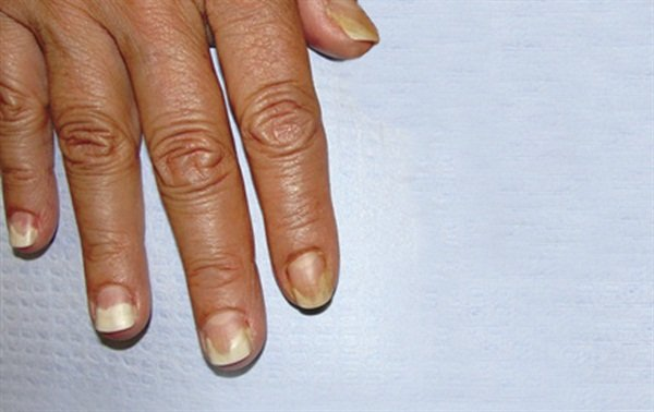 NAILS\' 10 Most-Viewed Questions Answered - Style - NAILS Magazine