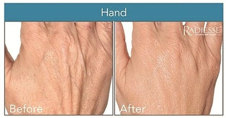 Hands treated with Radiesse