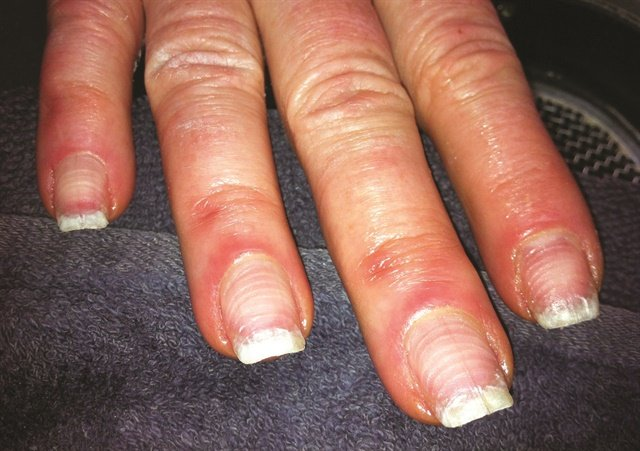 <p>Kimberly Andrews, a nail tech at The Woodhouse DaySpa in Carmel, Ind., discovered these badly damaged nails when she removed product from a new client who had been a regular patron at another salon.</p>
