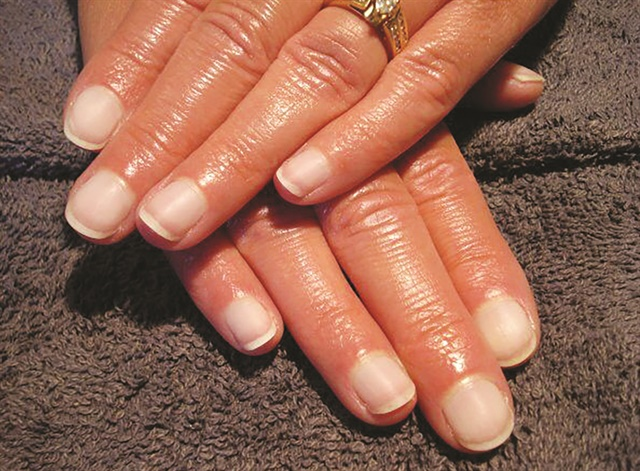 When a nail coating is removed, the natural nails should be in the same condition they were when the client first came to a salon, if not better. Note the healthy condition of these natural nails belonging to a long-time client of Kimberly Andrews after enhancements were removed.
