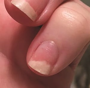 Under Our Nail Plate At What Might Be Described As A Border Between The Free Edge And Fingertip Is Hyponychium It Works Protective Seal