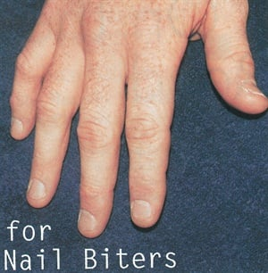 <p>Before: This male client's bitten nails get a facelift with a simple technique using pink and white acrylic.</p>