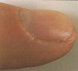 Clients with even minor disorders -- such as this infected hangnail -- should wait until the wound heals before you perform any nail service.