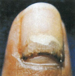 <p>This thumbnail was smashed with a hammer about a month before the photo was taken.</p>