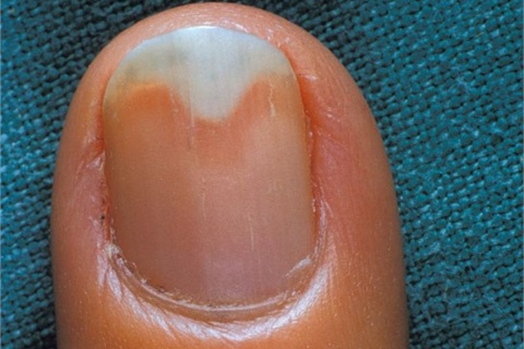<p>(än- e-kä li' -s s) separation of the nail from the nail bed</p>