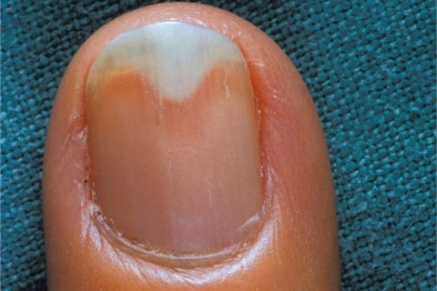 (än- e-kä li' -s s) separation of the nail from the nail bed