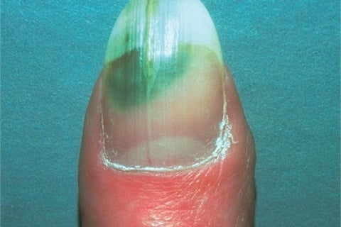 <p>Onycholysis makes nails vulnerable to a pseudomonas<br /> bacterial infection, as seen here.</p>