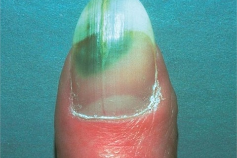 Onycholysis makes nails vulnerable to a pseudomonas bacterial infection, as seen here.
