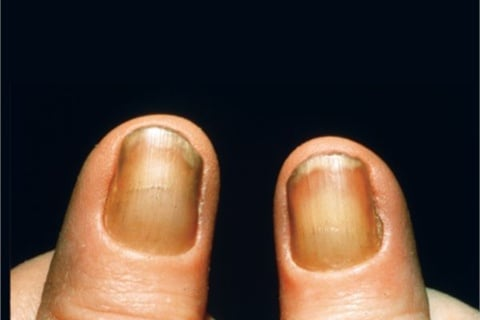 <p><strong>onychauxis </strong><strong>(on-i-'kawk-sis) </strong>a thickening and overgrowth of the nail </p>