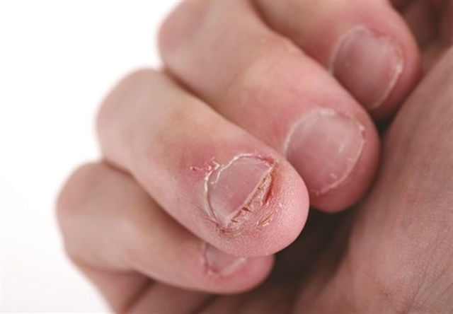 Onychophagy — severe nail biting — is considered a sub-group of OCD.