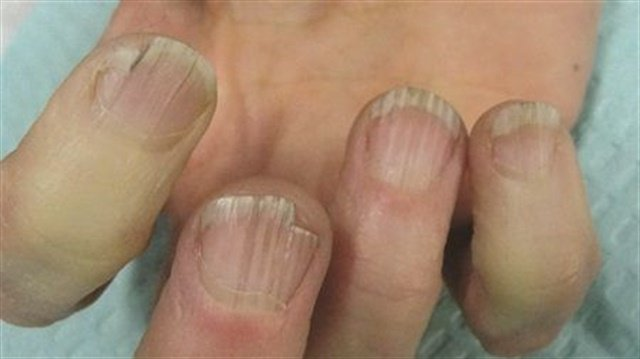 Compromised circulation or less efficient blood flow to our extremities can contribute to onychorrhexis (nail ridging).