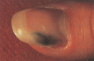 <p>The nail is stained green by a pseudomonas bacterial infection. it will take several months for the stains to grow out. </p>