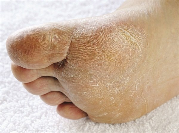 Is fungal nail infection contagious