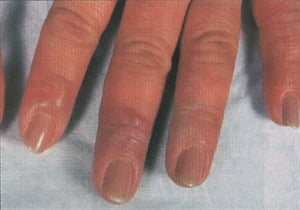 When A Client Develops Rash Around Her Fingertips Or On Neck Face She May Be Allergic To Chemical In Nail Product You Use