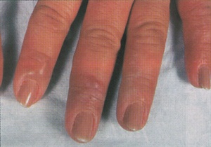 Skin Reactions Can Indicate a Product Allergy - Health - NAILS Magazine