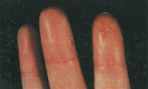 <p>This client developed allergies to nail glue,which resulted in blistering rash on her fingertips. The same thing happened to the client in the photo below. </p>