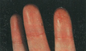 This client developed allergies to nail glue,which resulted in blistering rash on her fingertips. The same thing happened to the client in the photo below.