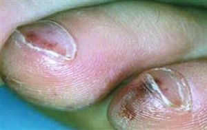<p>The only way to get rid of a splinter hemorrhage is to simply let it grow out.</p>