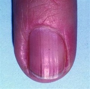 A Splinter Hemorrhage Is Quite Simply Bleeding Under The Nail Discoloration Caused From Blood Runs In Direction Grows