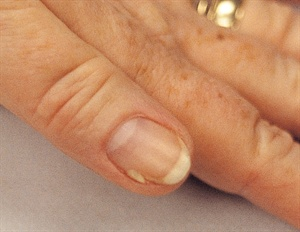 Onychoschizia Or Splitting Nails Are A Very Common Presentation In The Salon Split Can Occur Horizontally Vertically But Usually Near