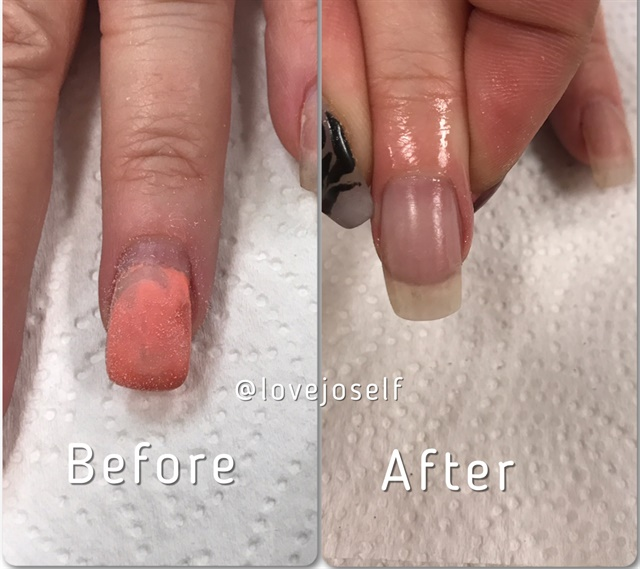 <p>I performed a fill on my instructor's nail.</p>