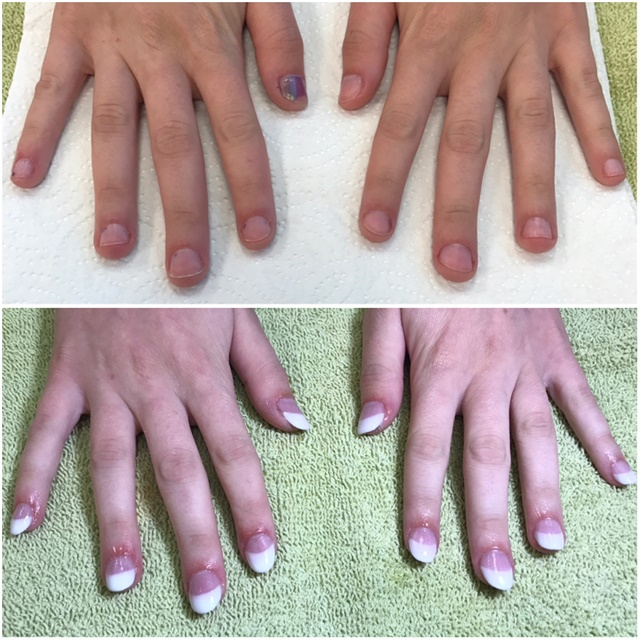 <p>Here are the pink-and-whites on tips. #EndNailBitting!</p>