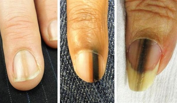 Here are three examples of melanoma in-situ (early stage melanoma).