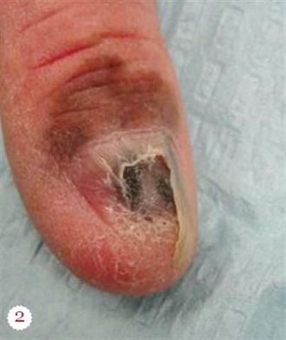 Note the surroundingpigment, indicative of anadvanced stage melanoma.