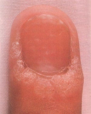 <p>This person suffers from warts on the posterior and lateral nail folds. These warts should be burned or frozen off by a dermatologist before they spread under the nail.</p>